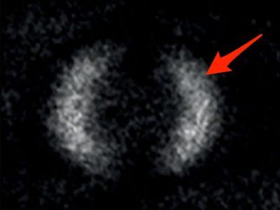 اولین تصویر از زنجیره کوانتومی به ثبت رسید