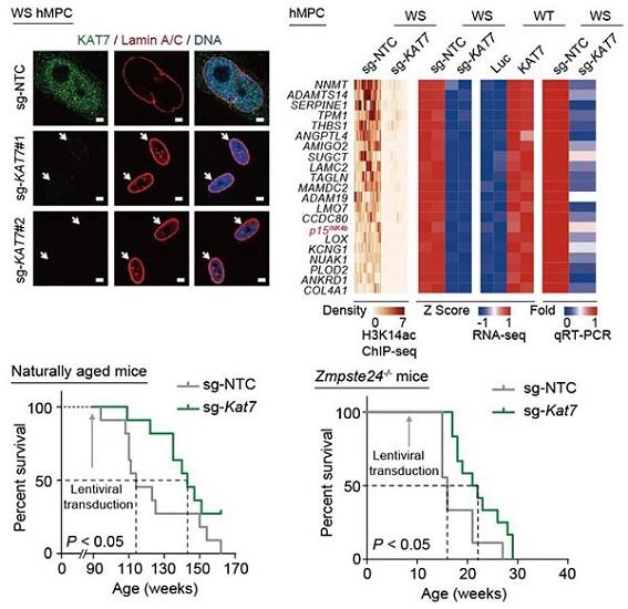Gene-Therapy-Targeting-Kat7-Extends-Lifespan